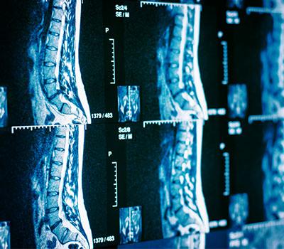 MRI & X-RAY
